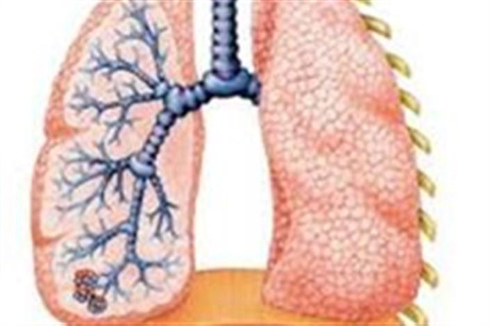 مبتلایان به سرطان ریه