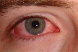 بازیابی بینایی نابینایان با پروتئین جلبک برای نخستین بار