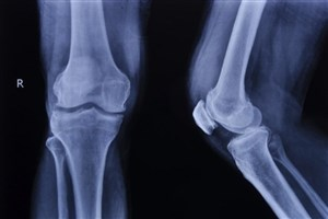 مردان در معرض خطر پوکی استخوان هستند
