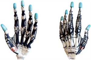 دست مصنوعی با فناوری چاپ سهبعدی