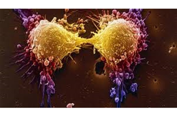 بی علامت ترین سرطان بدن را بشناسید