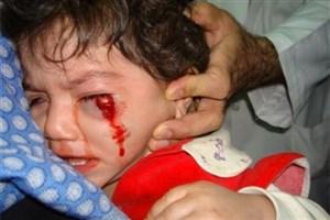 هشدار مهم پزشکی قانونی/ مرگ 16 نفر در حوادث  مراسم چهارشنبه سوری سال گذشته