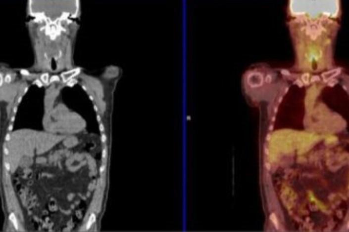اسکن تومورها