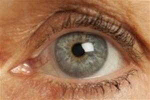 آب سیاه دومین علت نابینایی/ مهم ترین علت ابتلا به گلوکوم