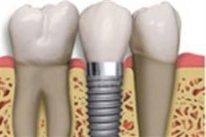 افزایش طول عمر ایمپلنت های دندانی و استخوانی با استفاده از نانوکامپوزیت ها