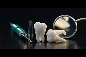Increasing the Efficiency & Longevity of Dental and Bone Implants