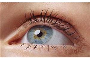 خطرات استفاده از لنزهای غیراستاندارد