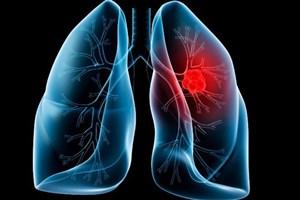 نکاتی که باید  درباره  آمبولی ریه بدانید