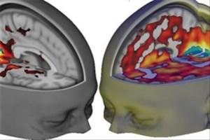جراحی تومورهای مغزی با چاقوی جدید ایمنتر میشود
