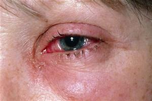 این بیماری چشمی درمان ندارد!/ گلوکوم مانند فشارخون درمان ندارد