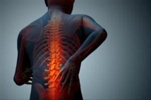 «بی تحرکی» از عوامل خطر تنگی کانال نخاع است