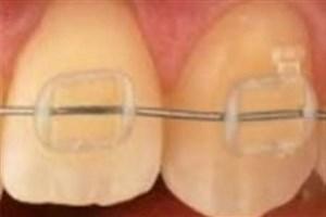 در طول ارتودنسی دندان ها چه خوراکیهایی نخوریم؟