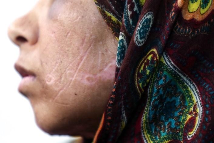 شکنجه 21 روزه زن بی پناه