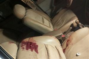 شلیک دو گلوله به سر همسر در پارکینگ بیمارستان عرفان/ دو گلوله سهم زن یک گلوله سهم مردی که با زنش اختلاف داشت/ حال هر دو وخیم است