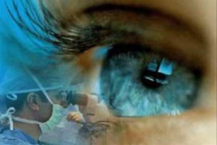 شبکیه چشم