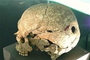 جمجمههای سوراخ؛  آیین دردناک 6 هزار ساله در روسیه