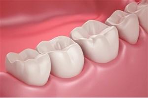 سلولهای بنیادی دندانی جایگزین ایمپلنت می شود