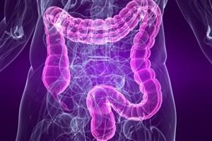 تاثیر طیف گستردهای از داروها بر رشد میکروبهای روده