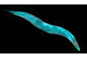 بررسی کرمهای زنده با میکروسکوپ رباتیک