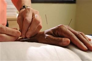 طب سوزنی،جایگزین بی خطر و موثر برای داروهای ضد درد