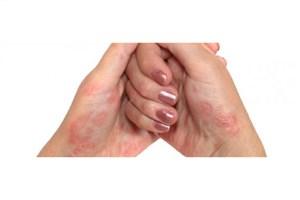 3 بیماری خطرناک که مبتلایان به پسوریازیس را تهدید می کند