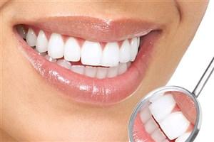 عوارض استفاده افراطی از مواد سفید کننده دندان ها
