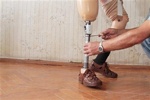Researchers Develop 3D Printed Prosthetics through Recycled Plastic