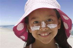 10 نوع از بهترین درمانهای آفتاب سوختگی در تابستان