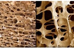 مردان هم به پوکیاستخوان مبتلا میشوند
