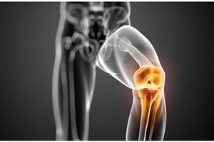 آرتروز با پلیمر مصنوعی درمان می شود