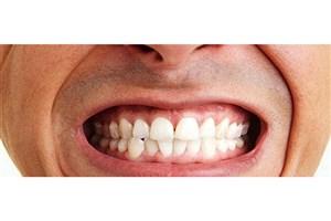 علت دندان قروچه چیست؟