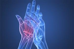 نقرس، روماتیسم مفصل و بیماریهای خونی عاملی برای درد در مچ دست