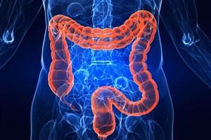 نقش پروبیوتیک ها در درمان سرطان روده