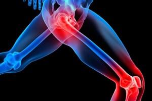 ۵۰ درصد ایرانی ها گرفتار اختلالات اسکلتی عضلانی هستند