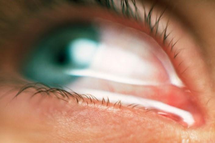 انحرافات چشمی