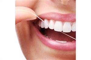 رعایت بهداشت دهان و دندان منجر به بقای عمر روکش دندانی می شود