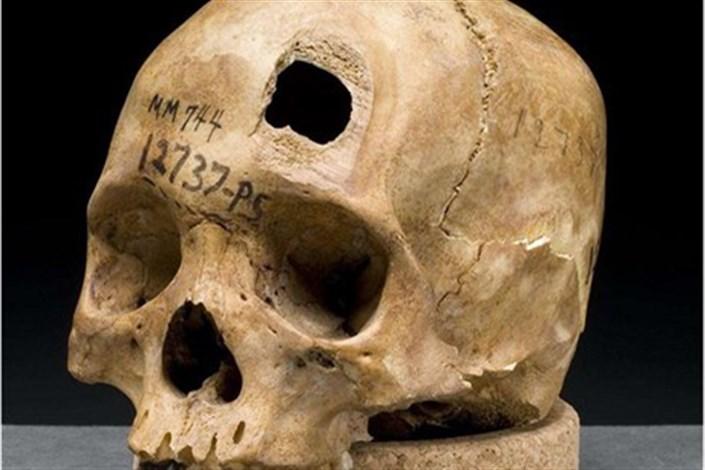 حفرههای روی جمجمههای باستانی نشانگر چیست؟