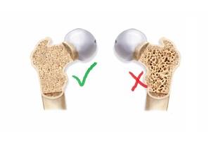 تغذیه مناسب و ورزش مهمترین راه مقابله با پوکی استخوان