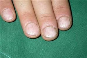 ناخنها، بهترین سر نخ برای تشخیص انواع بیماری