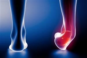 خطر بالای پیچخوردگی در مبتلایان به «بیثباتی عملکردی مچ پا»