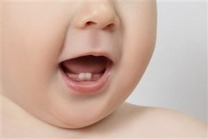 """۴ روش طبیعی برای تسکین دردِ """"دندان درآوردن"""" در نوزاد"""