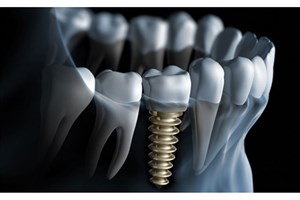 ضعف استخوان فک ، عمر ایمپلنت های دندانی را کاهش می دهد