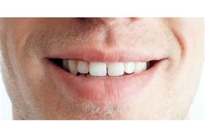 تشخیص خطر ابتلا به سرطان با بررسی باکتریهای دهان