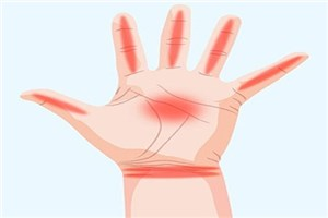 دستها چه چیزهایی درباره سلامت ما میگویند!