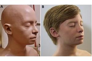 ساخت جمجمه و مغز قابل جراحی با چاپ سهبعدی
