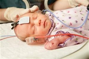 سالانه 4 تا 5 هزار نوزاد کم شنوا در کشور متولد می شود