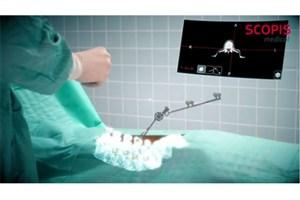 هدست هولولنز به یک دستیار تمام عیار در جراحی های ستون فقرات تبدیل می شود