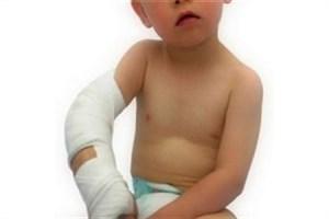 وقتی شکستگی استخوان در کودک خطرناک میشود