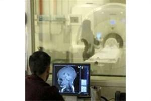 پیش بینی احتمال ابتلای کودکان به اوتیسم با دقت 96 درصدی