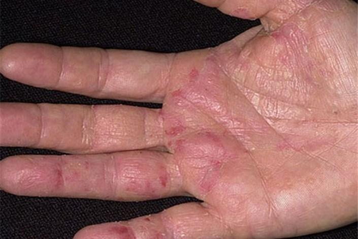 بیماری پوستی - کهیر
